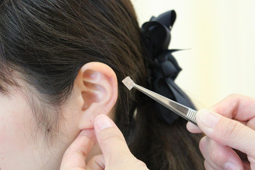 耳つぼ (3)